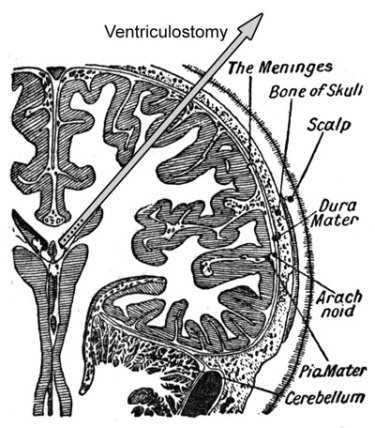 ventriculostomy